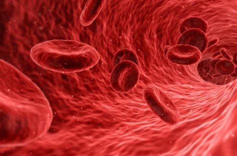 Conf. univ. dr. Horia Bumbea: La pacienții cu purpură trombocitopenică trombotică dobândită este crucial să începem tratamentul cât mai repede