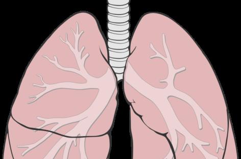 Terapie inedită pentru hipertensiunea arterială pulmonară