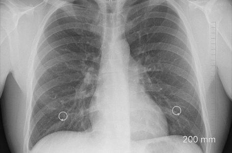 Covid-19: Tomografia toracică are o sensibilitate mai mare decât testarea coronavirusului în laborator