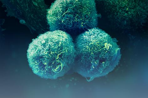 MSD România lansează un apel de proiecte pentru programul de granturi privind politicile de sănătate în domeniul cancerului