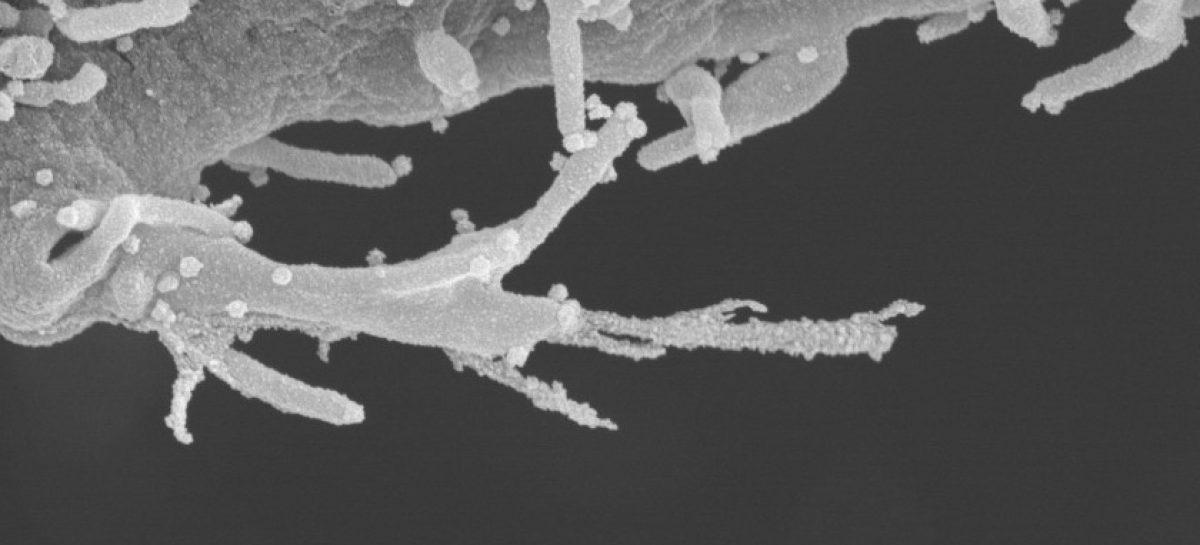 Nou mecanism prin care virusul SARS-CoV-2 infectează celulele umane, identificat de cercetători