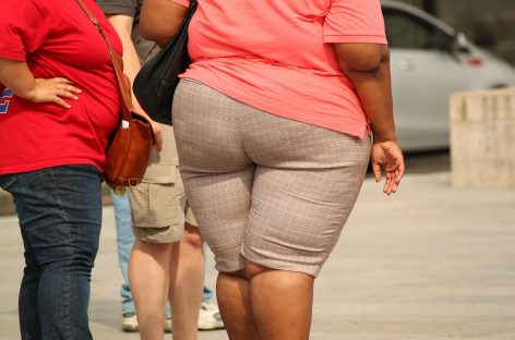 Studiu condus de o cercetătoare româncă: Obezitatea crește riscul de demență