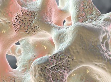 Ziua Mondială a Osteoporozei: 21% dintre femeile și 6% dintre bărbații de peste 50 de ani suferă de osteoporoză în România
