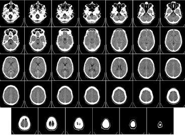 STUDIU: Postul înainte de examenele CT cu contrast poate face mai mult rău