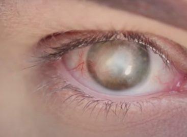 Premieră mondială în medicină: o persoană oarbă și-a recăpătat vederea după un implant de cornee artificială